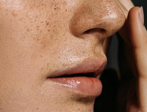Strahlende Haut