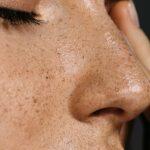 Frau mit hübsch geformter Nase